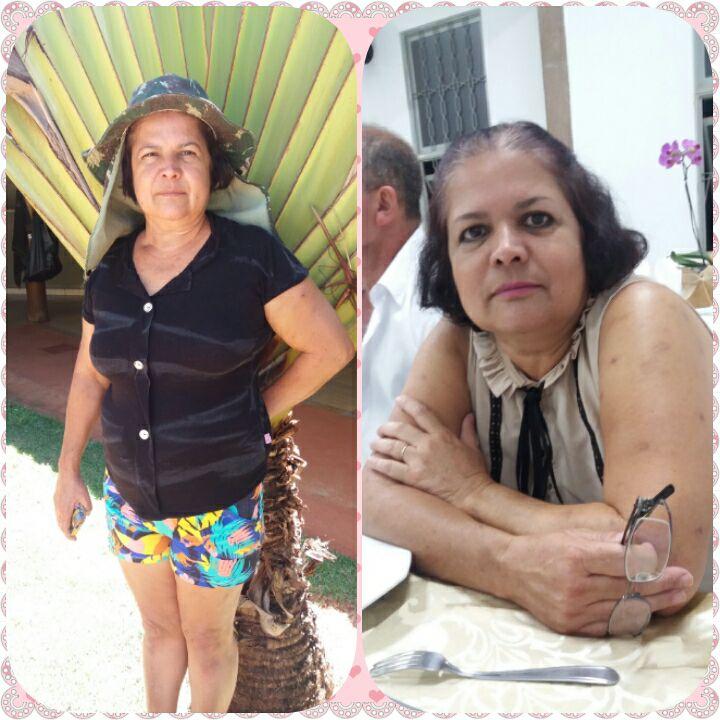 A vítima, dona de casa Eunice Claudino Delomodarme